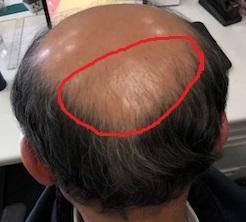 後頭部の比較画像です!
