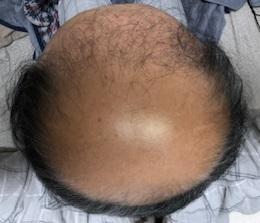 薄毛治療の開始から360日後の画像です