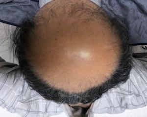薄毛治療の開始から370日後の画像です