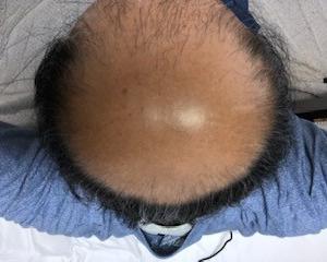 薄毛治療の開始から380日後の画像です