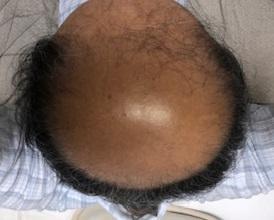 薄毛治療の開始から390日後の画像です