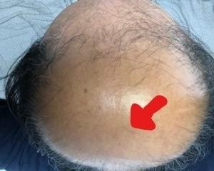 薄毛治療の開始から395日後の画像です