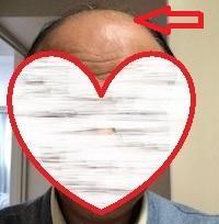 薄毛治療の開始から400日後の画像です