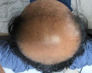 薄毛治療の開始から405日後の画像です