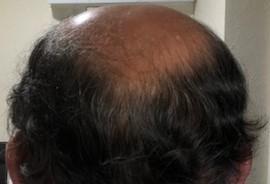 髪の毛が生えてキターッ!!(後頭部編)