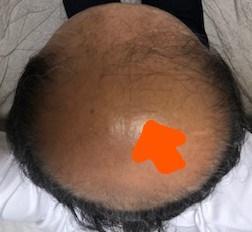 薄毛治療の開始から425日後の画像です