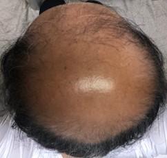 薄毛治療の開始から460日後の画像です