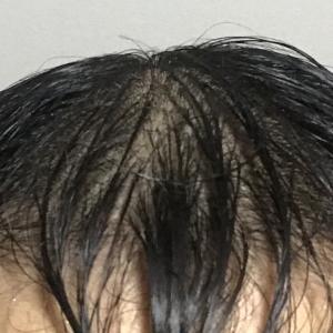 韓国植毛を決意
