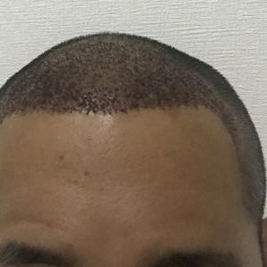 手術後 4日目 ベビーシャンプーで洗髪