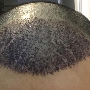 手術後 5日目 一部のかさぶたが剥がれかける