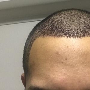 手術後 7日目 1週間経過 後頭部のかさぶたを取りはじめる
