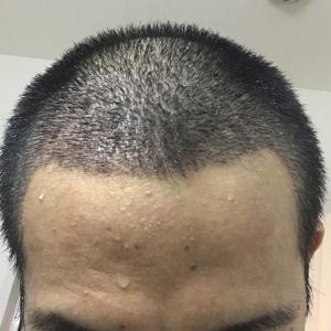 手術後 3週間 一時脱毛もショックロスも無し
