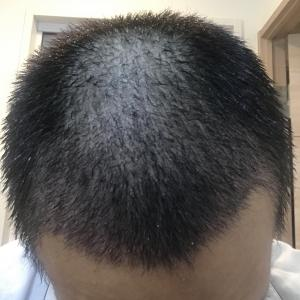 手術後 4週間 朝起きると抜け毛が…