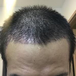 植毛後 1ヶ月 一時脱毛進行中