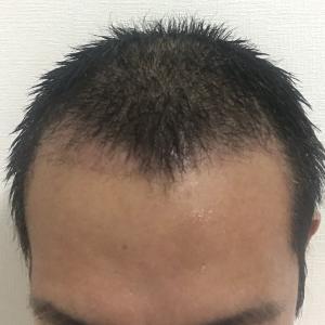 手術後 6週間 移植毛の白髪化が目立つ