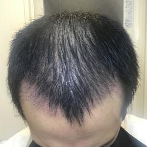手術後 8週間 産毛がさらに伸びる