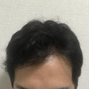 手術後 9ヶ月 植毛したらモテるようになりました