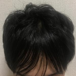 植毛後 10ヶ月 縮毛矯正をしてきました