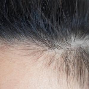 女性の薄毛はどうやって対策するの?