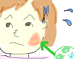 顔に「カビ」が生えた時の話~免疫力が下がると「その辺にいる菌」にも感染する