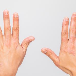 ■手湿疹で出来た「水泡」はつぶしていいの?水泡が出来ないようにする方法