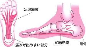 2本の足で歩く人間には、足裏って重要な部位なんです。