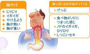 胃酸が逆流すると食道が危なくなるの!?