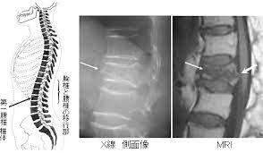 年とともに骨がもろくなってくるので、肋骨圧迫骨折などには要注意しましょう。