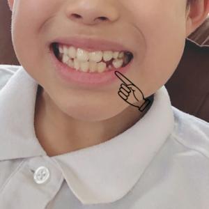息子10歳☆歯が抜けた!!!