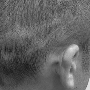 はじめてのヘアタトゥー|治療した翌日はバレずに仕事できる?