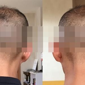 SPJヘアタトゥー体験&感想|ビフォーアフターを大公開