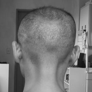 植毛失敗をヘアタトゥーで修正|3年8ヵ月後の状態を報告します