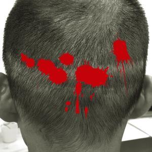 自毛植毛の傷跡、坊主や刈り上げでも周囲にバレない対処法