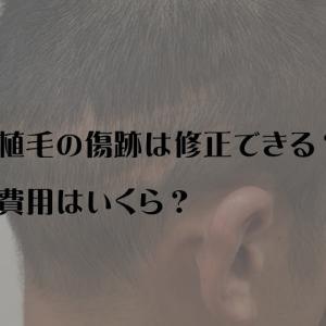 紀尾井町クリニック自毛植毛|傷跡のこったけど修正できる?