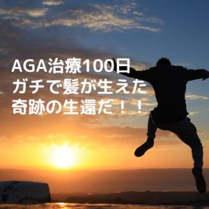 【AGA治療開始100日】ガチで髪が生き返った、奇跡の生還だ