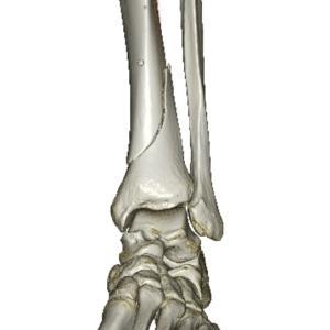 脛骨骨折記録