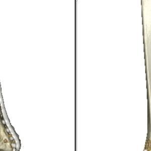 脛骨骨折術後(術後294日目)