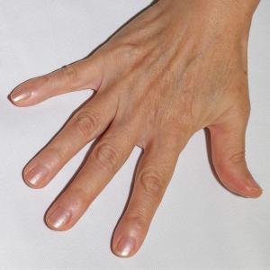 高齢な女性の手の甲