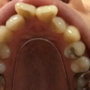 大人の歯列矯正 | ビフォーアフターと費用大公開