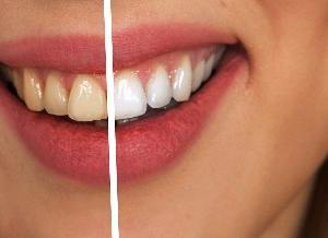 【第三回】歯を白く、笑顔に自信を!