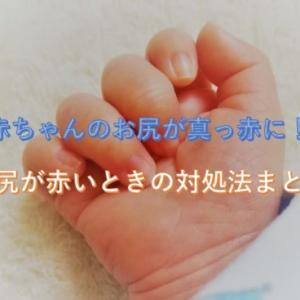 赤ちゃんのお尻が真っ赤に!赤ちゃんのお尻が赤いときの対処法まとめ