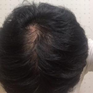 AGA治療を中止して2.5ヶ月【休止日記VOL.6】