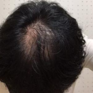 AGA治療を中断して3ヶ月【休止日記最終回】