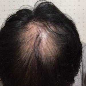 ハゲ治療日記VOL.2【頭頂部がさらに丸見えになりました】