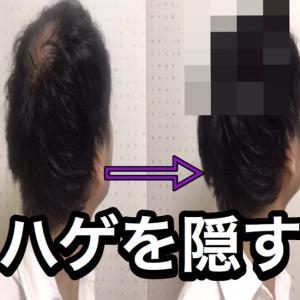 【AGA治療の初期脱毛なんて怖くない!】薄くなったら隠せばいい【私の方法教えます】