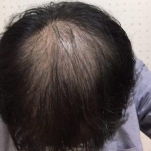 ハゲ治療日記VOL.3【AGA治療1ヶ月経過でさらにハゲに!?】