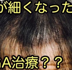 髪が細くなってきた段階でAGA治療を始めるべきか?