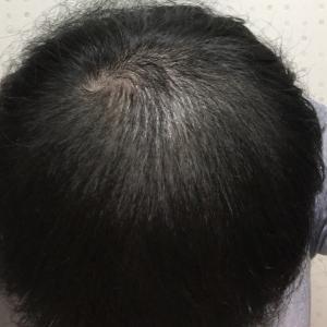 ハゲ治療日記VOL.5【2ヶ月経過で地肌が目立たなくなってきました】