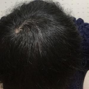 ハゲ治療日記VOL.6【AGA治療76日経過でさら地肌が目立たなくなった!】