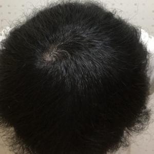 AGA治療3ヶ月経過で地肌丸見えのつむじハゲが劇的変化!?【ハゲ治療日記VOL.7】